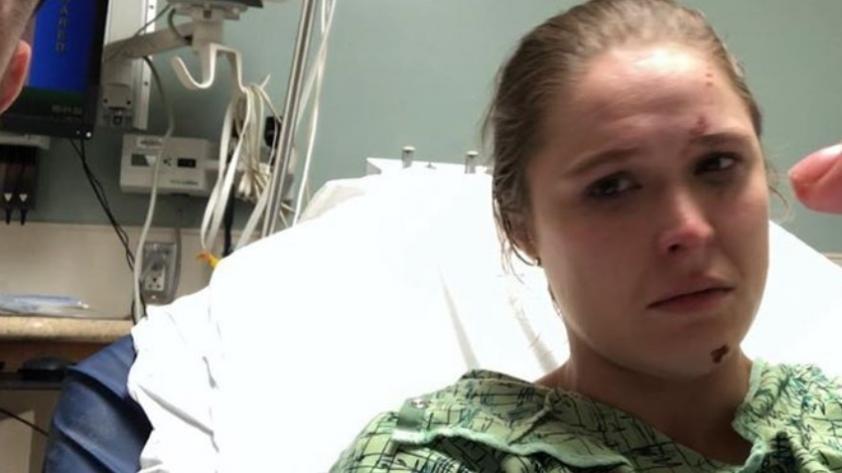 ¡De terror! El gravísimo accidente que sufrió en la mano la ex luchadora Ronda Rousey [IMÁGENES FUERTES]