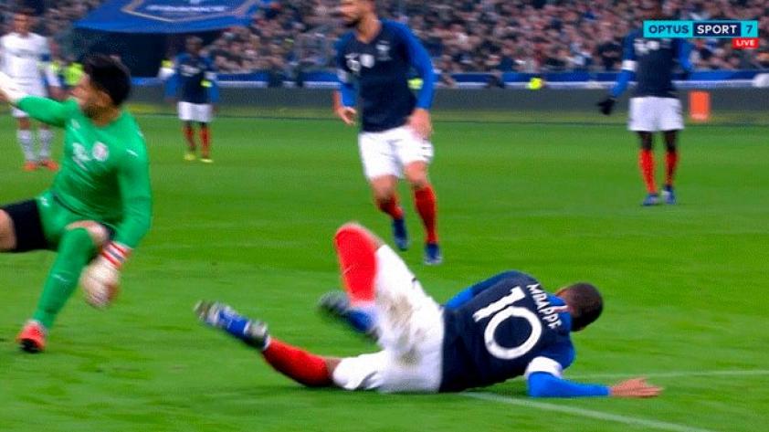 ¡Uno más! Kylian Mbappé terminó golpeado luego del partido de Francia y Uruguay